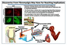 Nuevo estudio ratifica que existen causas biológicas en la Fibromialgia (2/3)
