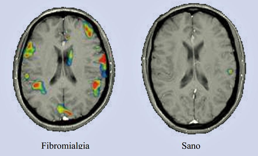 Evidencias diagnósticas mediante imagen en la Fibromialgia, frente a otras evidencias erróneas (4/4)