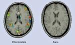 RM Fibromialgia 2