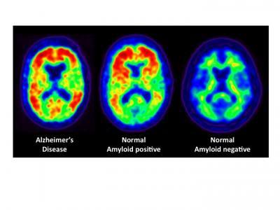 La pérdida de memoria y de agudeza mental en los afectados de SSC (4/6)