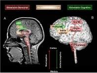 areas cerebrales por RM