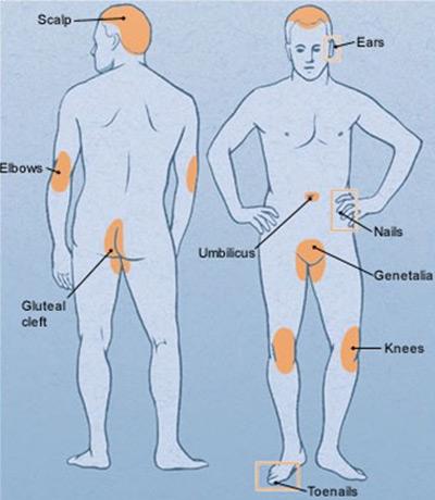 La psoriasis es mucho más que una enfermedad dermatológica (1/6)