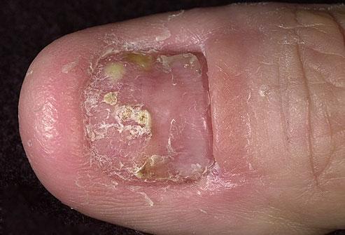 La psoriasis es mucho más que una enfermedad dermatológica (2/6)