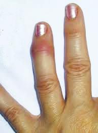 La psoriasis es mucho más que una enfermedad dermatológica (3/6)